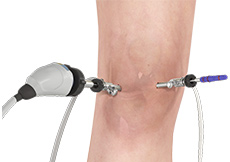Benefits of Arthroscopic Surgery