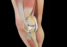 Knee Implants