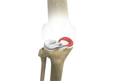 Medial Meniscus Syndrome